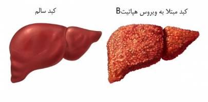 همه چیز درباره هپاتیت B از راههای انتقال تا درمان و پیشگیری