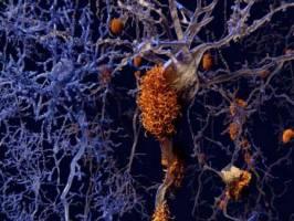 غلبه بر آلزایمر با رژیم غذایی سالم و ورزش
