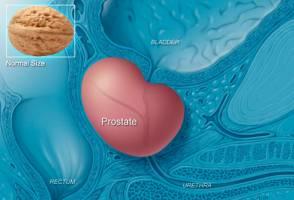 نشانههای سرطان پروستات چیست؟