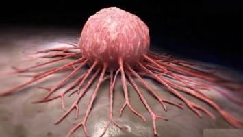 درباره سرطان بیشتر بدانیم!