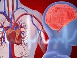 کاهش ۵۰ درصدی سکته قلبی و مغزی با مصرف مستمر قرص «پلی پیل»