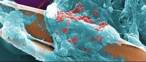 تاثیرات نانو ذرات برای درمان عفونت های باکتریایی