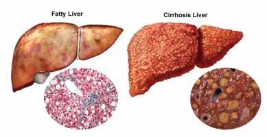 تشخیص بیماری کبد در مراحل اولیه